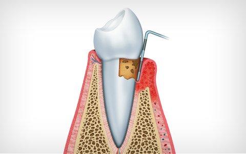 parodontie dentiste deux montagnes. Black Bedroom Furniture Sets. Home Design Ideas